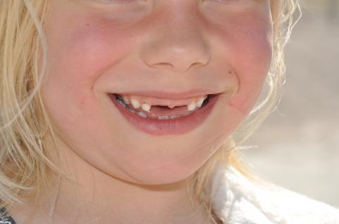 Här finns fortfarande tänder att tappa.